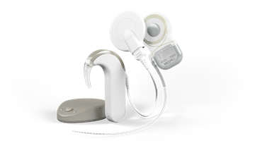 The latest cochlear implant system SYNCHRONY